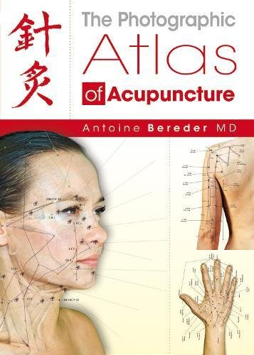 9781844095384: The Photographic Atlas of Acupuncture