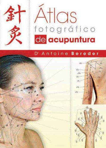 Atlas fotografico de acupuntura (Spanish Edition): Antoine Bereder MD