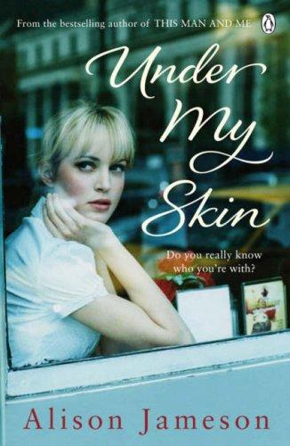 9781844880980: Under My Skin
