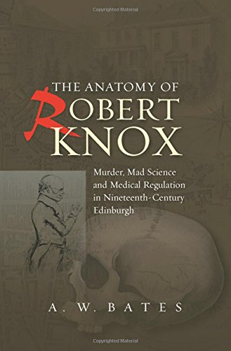 The Anatomy of Robert Knox: Murder, Mad Science and Medical Regulation in Nineteenth-Century ...