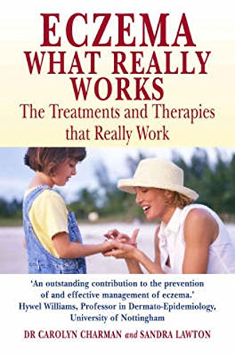Eczema: The Treatments and Therapies That Really Work: Charman, Carolyn, Lawton, Sandra
