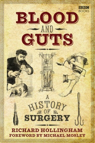 9781846075032: Blood and Guts: A History of Surgery