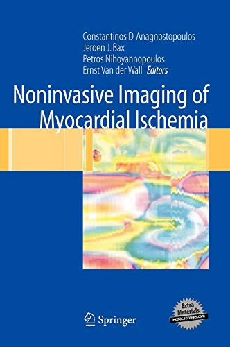 9781846280276: Noninvasive Imaging of Myocardial Ischemia