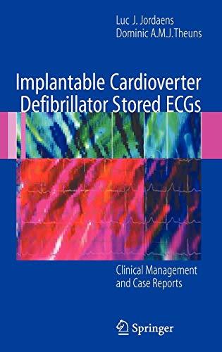 Implantable Cardioverter Defibrillator Stored ECGs: Clinical Management: Luc J. Jordaens,