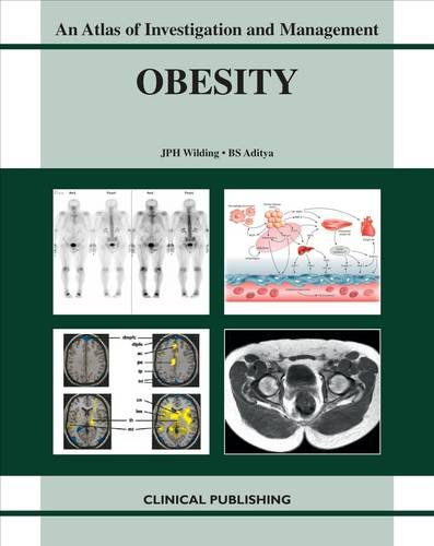 Obesity: An Atlas of Investigation and Management: B. S. Aditya