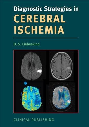 Diagnostic Strategies in Cerebral Ischemia
