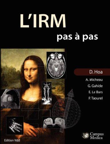9781847537768: L'IRM pas à pas (Edition Noir & Blanc) (French Edition)