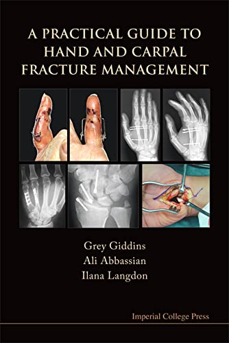 9781848162617: A Practical Guide to Hand and Carpal Fracture Management