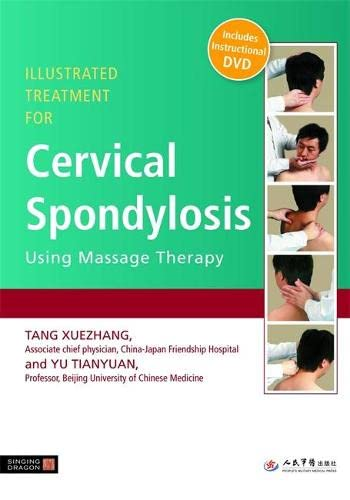 9781848190627: Illustrated Treatment for Cervical Spondylosis Using Massage Therapy