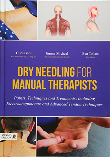 9781848192553: Dry Needling for Manual Therapists: Points, Techniques and Treatments, Including Electroacupuncture and Advanced Tendon Techniques