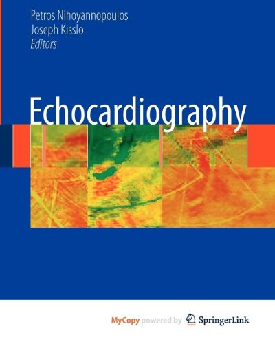 9781848823082: Echocardiography