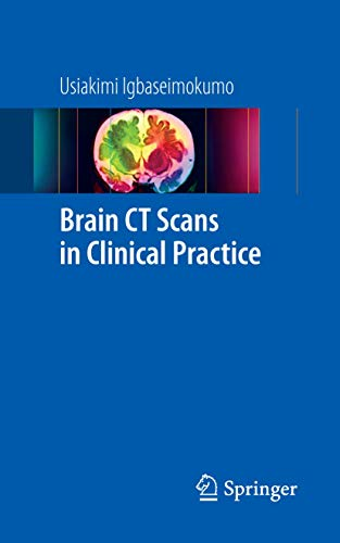 9781848823648: Brain CT Scans in Clinical Practice