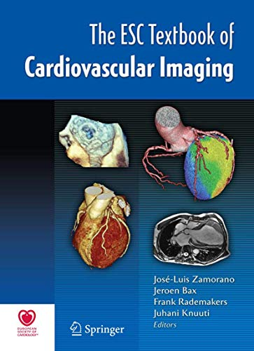 9781848824201: The ESC Textbook of Cardiovascular Imaging