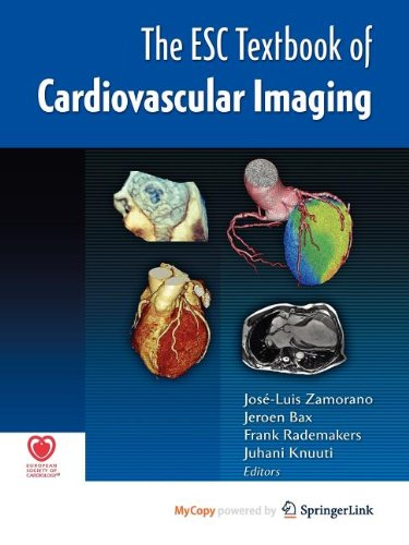 9781848824379: The ESC Textbook of Cardiovascular Imaging