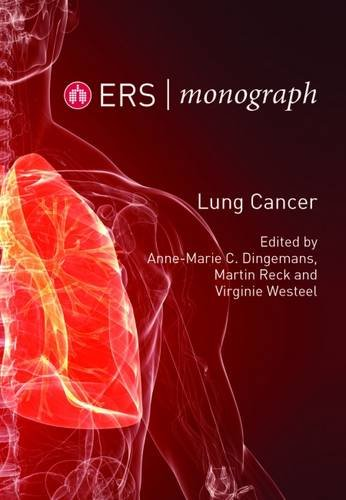 9781849840613: Lung Cancer: 68