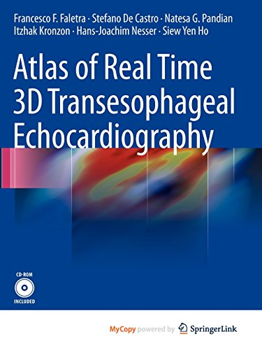 9781849960847: Atlas of Real Time 3D Transesophageal Echocardiography