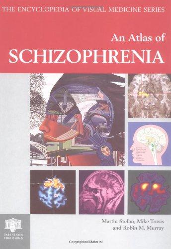 9781850700746: Atlas of Schizophrenia (Encyclopedia of Visual Medicine Series)