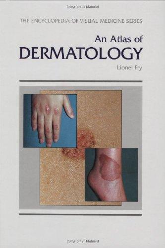 9781850704614: An Atlas of Dermatology