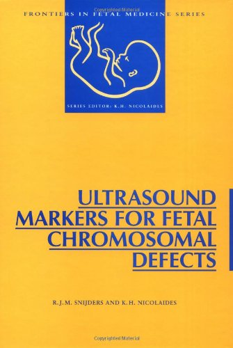 Ultrasound Markers for Fetal Chromosomal Defects (Frontiers