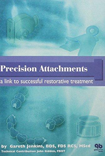 Precision Attachments: A Link to Successful Restorative: Gareth Jenkins