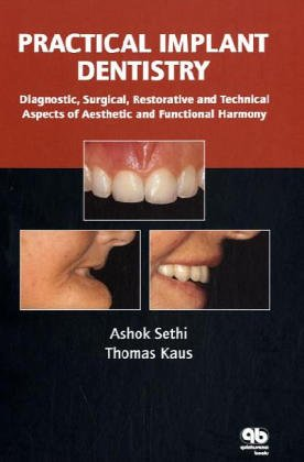 Practical Implant Dentistry: Diagnostic, Surgical, Restorative And: Ashok Sethi; Thomas