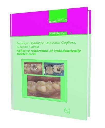 9781850971351: Adhesive Restoration of Endontically Treated Teeth: Endodontics 4 (Quintessentials of Dental Practice)