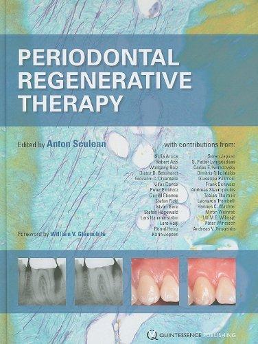 9781850971580: Periodontal Regenerative Therapy