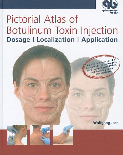 9781850971757: Pictorial Atlas of Botulinum Toxin Injection: Dosage, Localization, Application