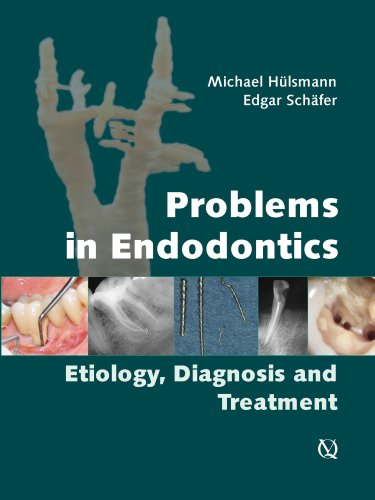 Problems in Endodontics: Etiology, Diagnosis, and Treatment: Michael Hulsmann, Edgar