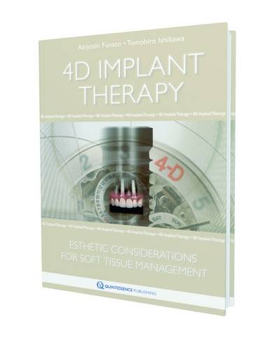 9781850972013: 4D Implant Therapy: Esthetic Considerations for Soft-Tissue Management