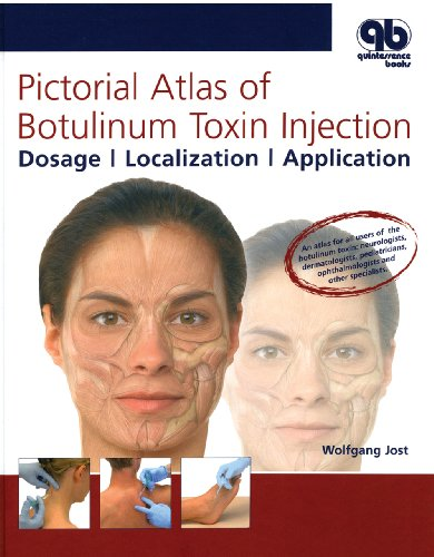 9781850972204: Pictorial Atlas of Botulinum Toxin Injection: Dosage, Localization, Application