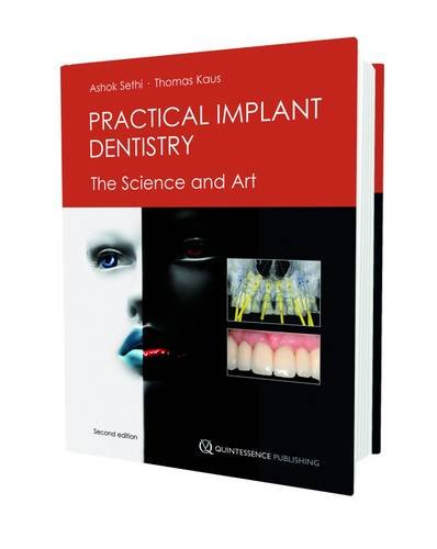 Practical Implant Dentistry: The Science and Art: Ashok Sethi