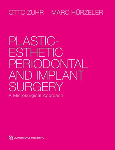 9781850972266: Plastic-Esthetic Periodontal and Implant Surgery: A Microsurgical Approach