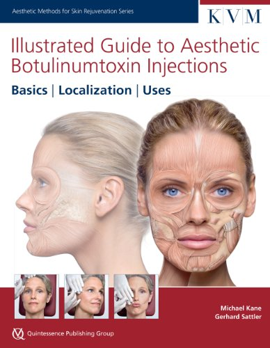 Illustrated Guide to Aesthetic Botulinum Toxin Injections: Michael Kane, Gerhard