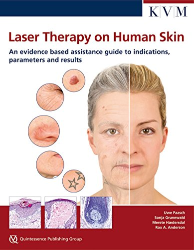 9781850972877: Laser Therapy on Human Skin