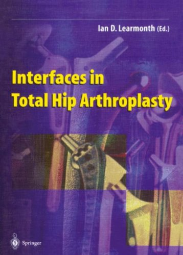 9781852332051: Interfaces in Total Hip Arthroplasty