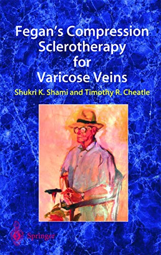 9781852337124: Fegan's Compression Sclerotherapy for Varicose Veins