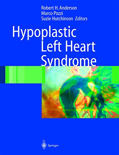 9781852337650: Hypoplastic Left Heart Syndrome