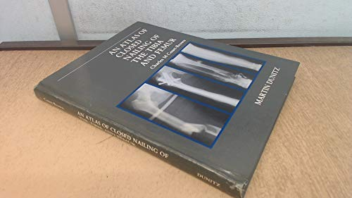 9781853170171: An Atlas of Closed Nailing of the Tibia and Femur