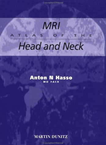 9781853170676: MRI Atlas of the Head and Neck