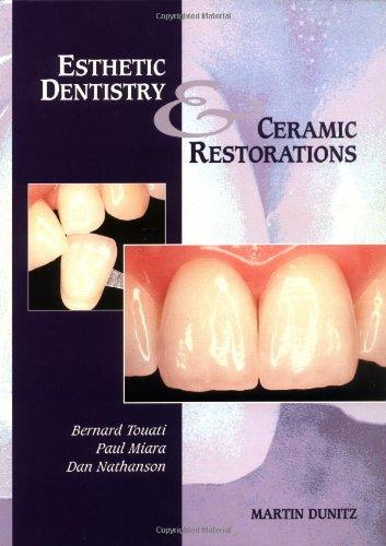Esthetic Dentistry and Ceramic Restorations: Bernard Touati, Paul Miara, Dan Nathanson