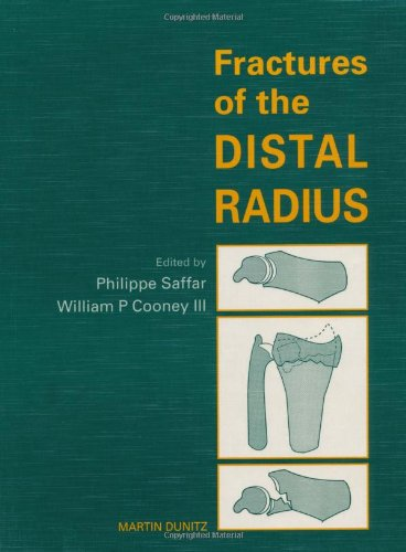 9781853171789: Fractures of the Distal Radius