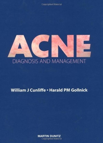 Acne: Diagnosis and Management: William J. Cunliffe,