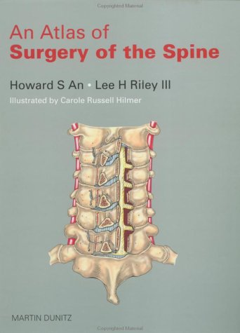 9781853172182: An Atlas of Surgery of the Spine