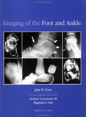 9781853172199: Imaging of the Foot and Ankle