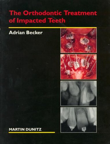 9781853173288: The Orthodontic Treatment of Impacted Teeth