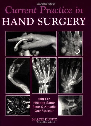 9781853173493: Current Practice in Hand Surgery