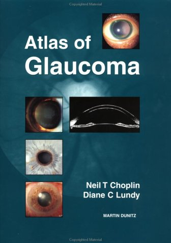 9781853173752: Atlas of Glaucoma, Second Edition (Softcover Special Edition)