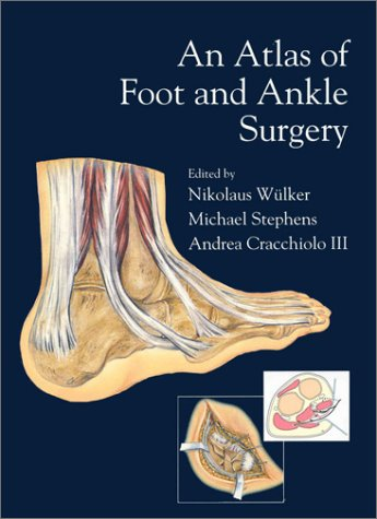 An Atlas of Foot & Ankle Surgery: Nikolaus Wulker; Michael
