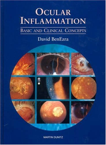 9781853175077: Ocular Inflammation: Basic and Clinical Concepts
